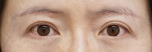 眉下切開 手術直後、1ヶ月後のAfterの写真