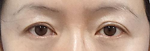 眉下切開 手術直後、1ヶ月後のBefore写真