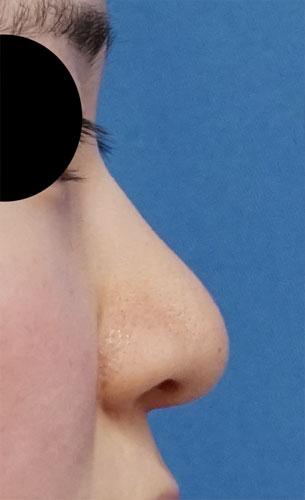 小鼻縮小(内側+外側)、鼻尖縮小(3D法)+軟骨移植(ストラットも) 右側面 3ヶ月後