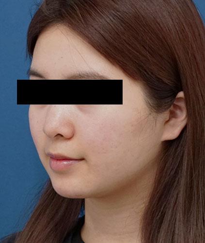 切らない強力小顔3点セット 左斜め 3ヶ月後