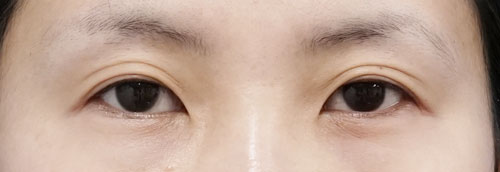 全切開、眼瞼下垂 3ヶ月後のBefore写真