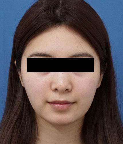 切らない強力小顔3点セット 3ヶ月後のAfterの写真