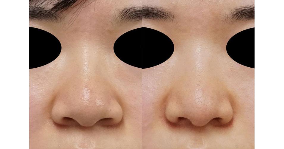 小鼻縮小(内側+外側)、鼻尖縮小(3D法)+軟骨移植(ストラットも) 3ヶ月後