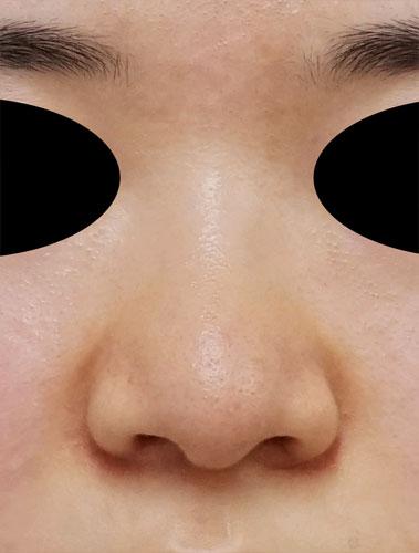 小鼻縮小(内側+外側)、鼻尖縮小(3D法)+軟骨移植(ストラットも) 3ヶ月後のAfterの写真