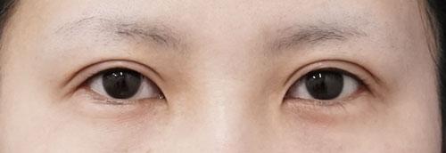 全切開、眼瞼下垂 3ヶ月後のAfterの写真