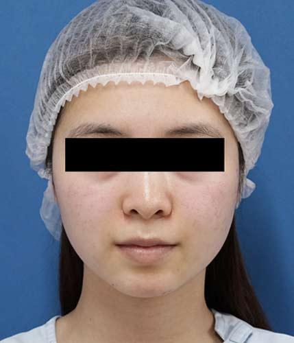 切らない強力小顔3点セット 正面 手術前