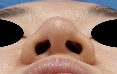 小鼻縮小(内側+外側)、鼻尖縮小(3D法)+軟骨移植(ストラットも) 下から 3ヶ月後