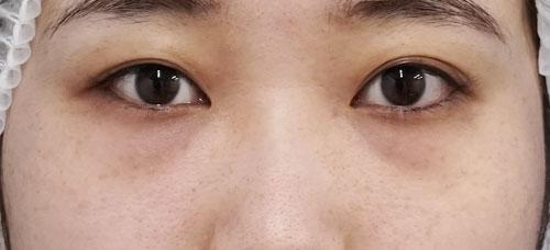 目の下脂肪取り+コンデンス脂肪注入 3ヶ月後のBefore写真