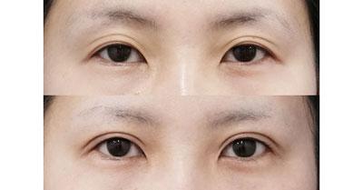 全切開、眼瞼下垂 3ヶ月後