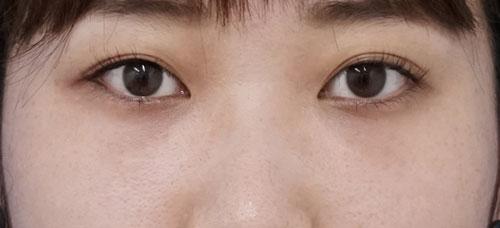 目の下脂肪取り+コンデンス脂肪注入 3ヶ月後のAfterの写真