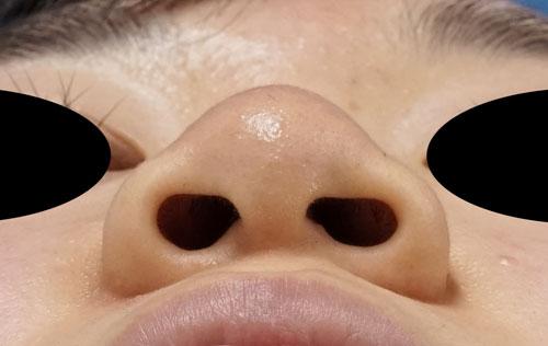 小鼻縮小(内側+外側)、鼻尖縮小(3D法)+軟骨移植(ストラットも) 下から 手術前