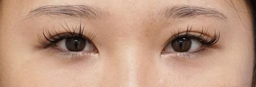 切るたれ目(下眼瞼下制) 3か月後のBefore写真