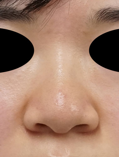 小鼻縮小(内側+外側)、鼻尖縮小(3D法)+軟骨移植(ストラットも) 正面 手術前