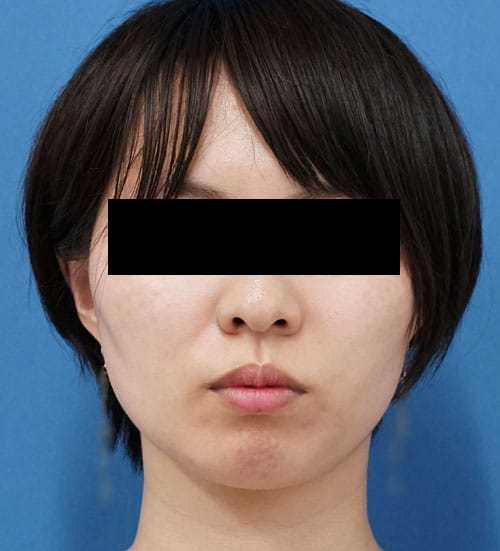 強力小顔ボトックス1か月後のBefore写真