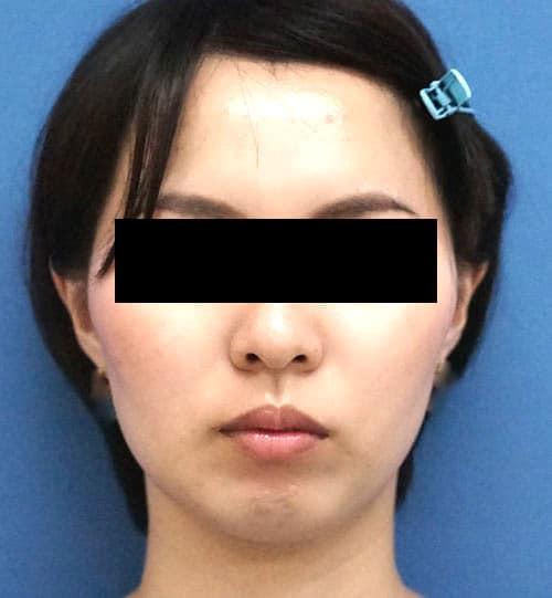 強力小顔ボトックス1か月後のAfterの写真