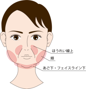 たるみ・皮下脂肪が目立ちやすい部位