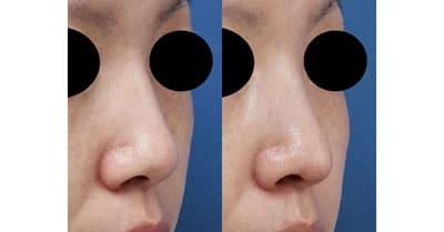 鼻尖縮小、軟骨移植 3ヶ月後