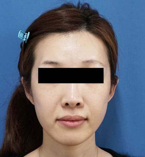 フィラーリフト、こめかみヒアルロン酸 1週間後のBefore写真