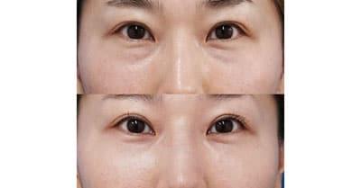 目の下脂肪取り、コンデンス脂肪注入 3ヶ月後、直後