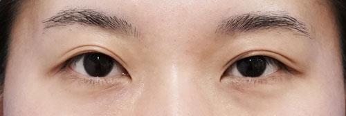 二重全切開、眼瞼下垂(挙筋前転術) 3ヶ月後、1ヶ月後ものBefore写真