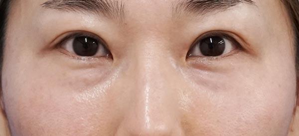 目の下脂肪取り、コンデンス脂肪注入 3ヶ月後、直後のBefore写真