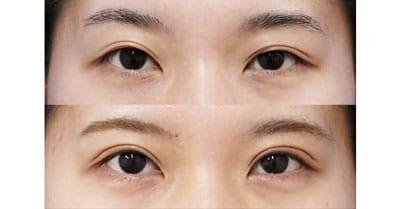 二重全切開、眼瞼下垂(挙筋前転術) 3ヶ月後、1ヶ月後も