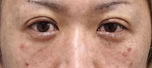 目の下脂肪取り、コンデンス脂肪注入 手術直後