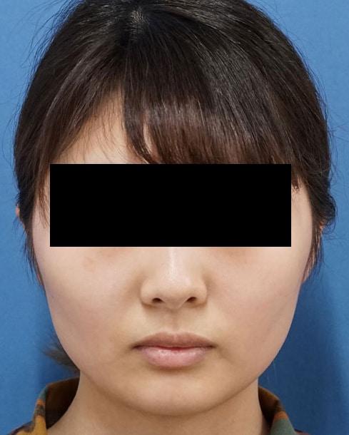 アラガン強力小顔ボトックス1か月後のBefore写真