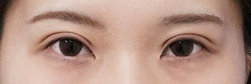二重全切開、眼瞼下垂(挙筋前転術) 1ヶ月後