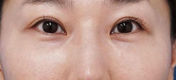 目の下脂肪取り、コンデンス脂肪注入 3ヶ月後、直後のAfterの写真