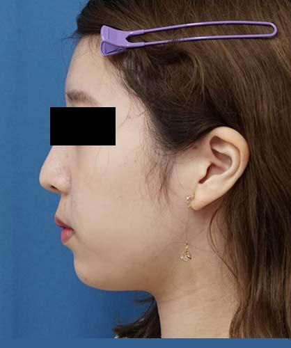 脂肪吸引(ホホ・アゴ下) 左側面 3ヶ月後