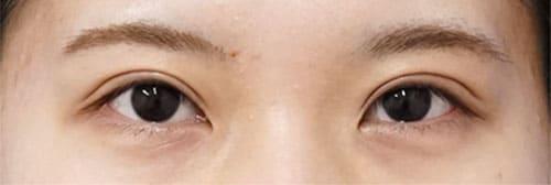 二重全切開、眼瞼下垂(挙筋前転術) 3ヶ月後、1ヶ月後ものAfterの写真