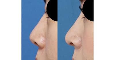鼻尖縮小、軟骨移植 1ヶ月後