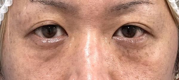 目の下脂肪取り、コンデンス脂肪注入 手術前