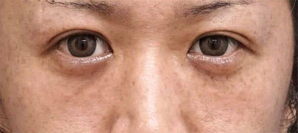 目の下脂肪取り、コンデンス脂肪注入 1ヶ月後