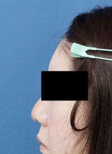 額ヒアルロン酸 1ヶ月後 左側面