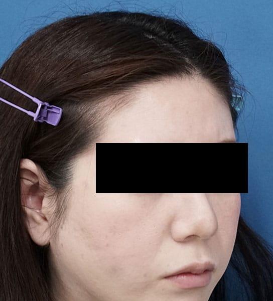 額ヒアルロン酸 処置前 右斜め