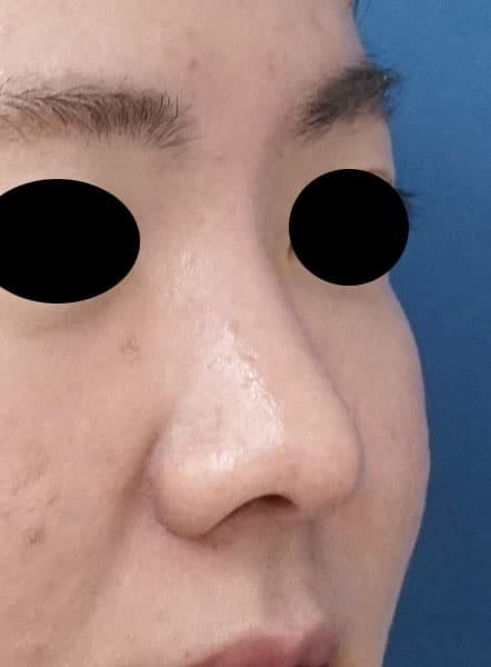 団子鼻改善(鼻尖縮小)、軟骨移植、ストラット、小鼻縮小(内側法+外側法) 3か月後 右斜め