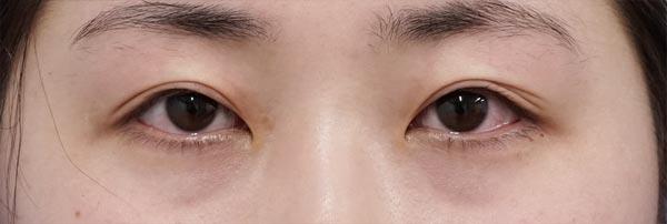 切らない眼瞼下垂 手術直後