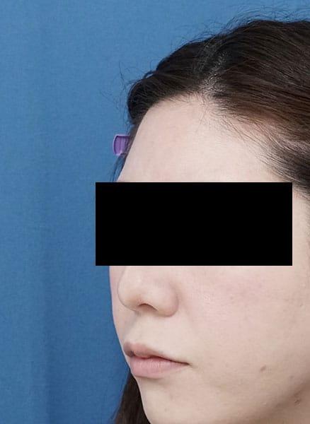 額ヒアルロン酸 処置前 左斜め