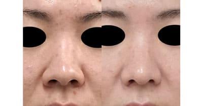 鼻尖縮小、軟骨移植、ストラット、小鼻縮小(内側法+外側法) 3ヶ月後