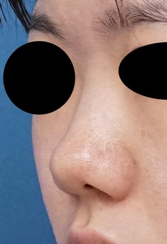 鼻尖縮小、軟骨移植、I型プロテーゼ 3ヶ月後のBefore写真