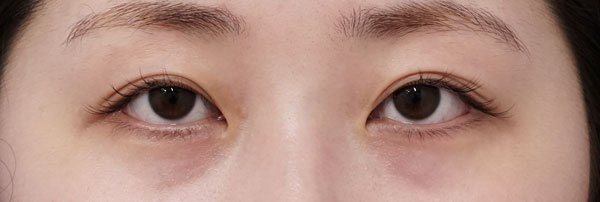 切らない眼瞼下垂 3ヶ月後