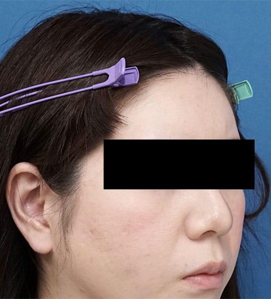 額ヒアルロン酸 1ヶ月後 右斜め