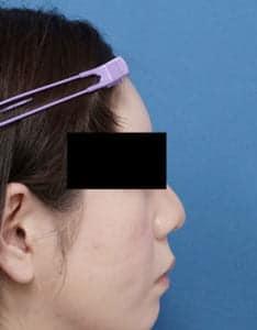 額ヒアルロン酸 1ヶ月後 右側面