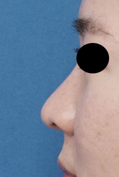 団子鼻改善(鼻尖縮小)、軟骨移植、ストラット、小鼻縮小(内側法+外側法) 3か月後 左側面