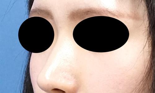 クレヴィエルコントア(鼻根部)1週間後のBefore写真