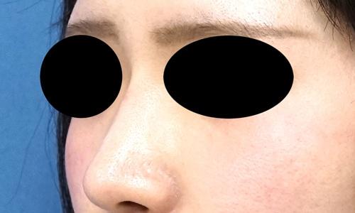 クレヴィエルコントア(鼻根部)1週間後のAfterの写真