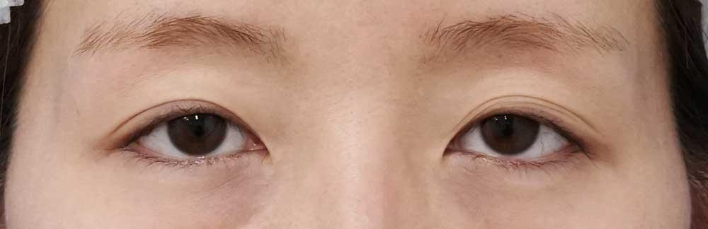 切らない眼瞼下垂手術 1ヶ月後のBefore写真