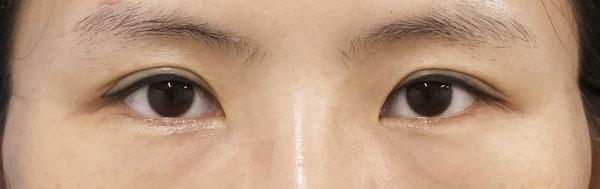 デカ目2点セット(切らない眼瞼下垂、切らないタレ目) 3ヶ月後のAfterの写真